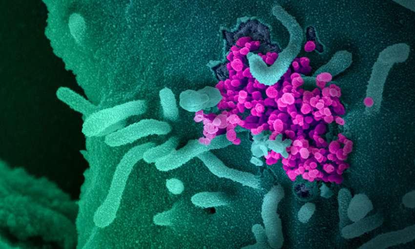 Covid-19: Le PIO considéré comme le plus gros foyer d'infections à Maurice