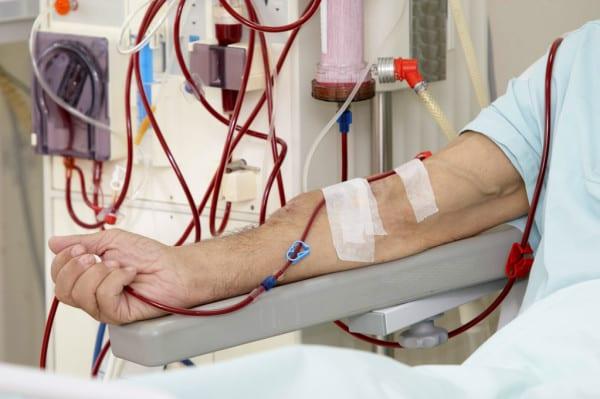 42 des 89 personnes en dialyse ont été testées positives à la Covid-19